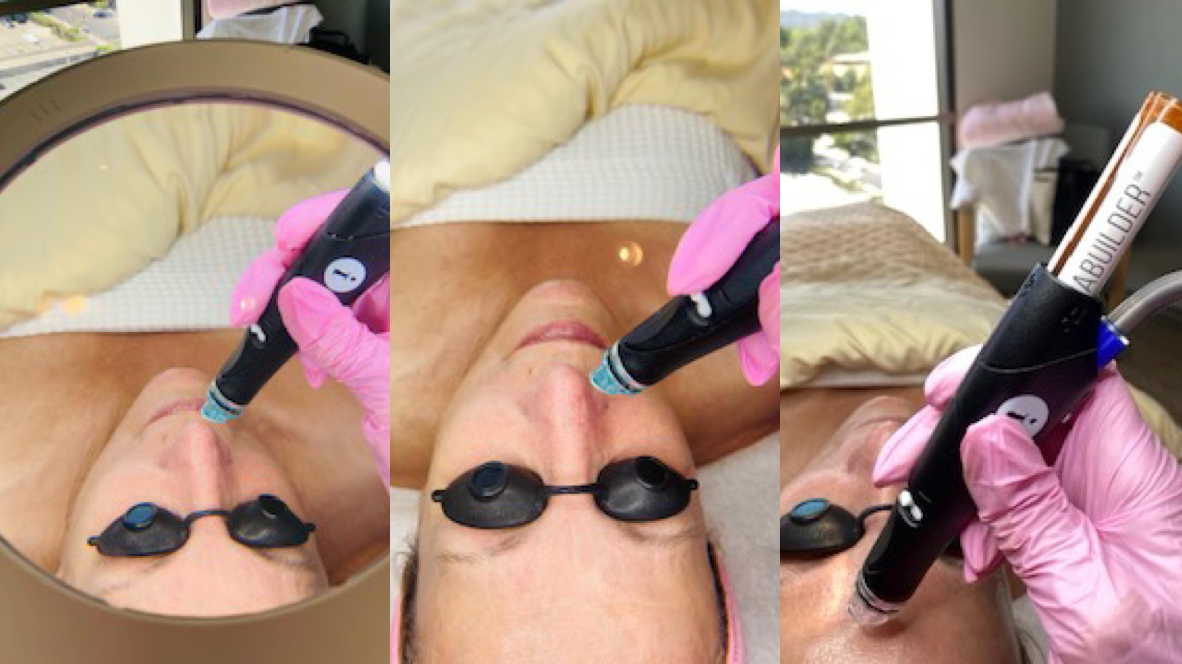 Lisa Arnold, medical silk spa, post-lifting facial treatment